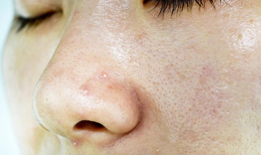 How To Remove Oily Skin Naturally At Home
